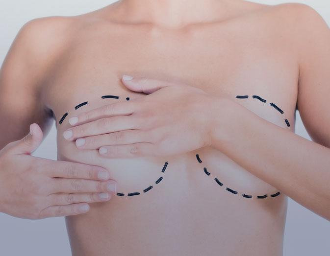 Breast lipofilling