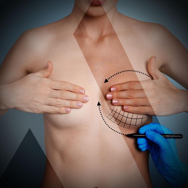 breast-augmentation-turkey